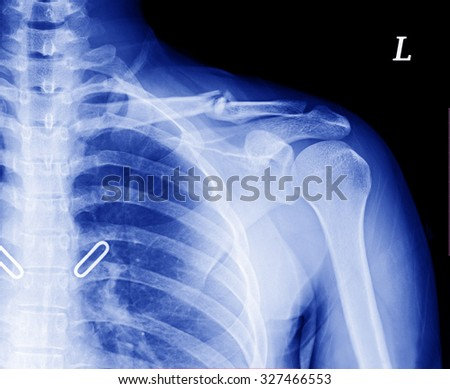 X-ray image of left clavicle fracture , after treatment for 4 weeks.
