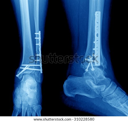 X-ray image of leg - stock photo