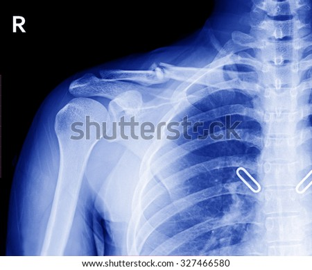 X-ray image of right clavicle fracture , after treatment for 4 weeks.