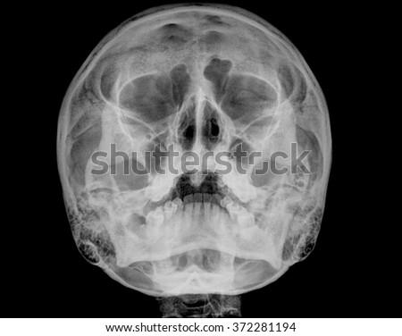 x-ray image of skull human - stock photo