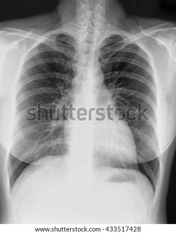 X-Ray Image Of Woman Chest for a medical diagnosis