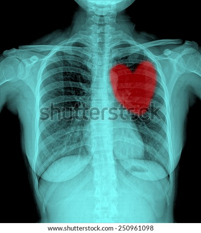 X-Ray Image Of Women Chest,red heart - stock photo