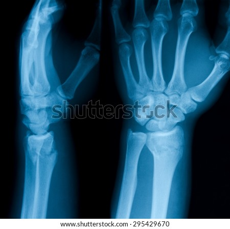 X-ray image of wrist joint, AP and lateral view, Showing ulna fracture.
