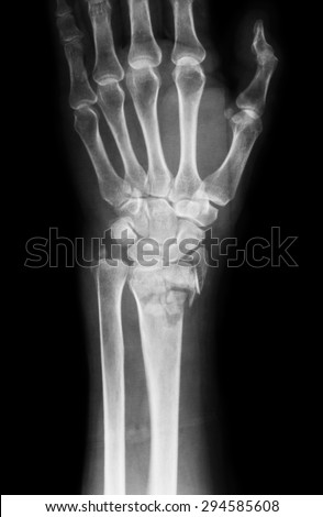 X-ray image of wrist joint, AP view, Shows radius fracture. - stock photo