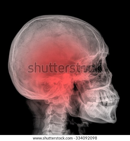 X-ray : Lateral skull , deformation of the jaw bone - stock photo