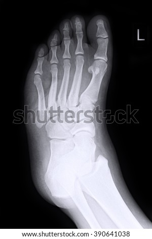 X-ray Left Foot