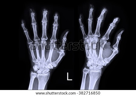 X-ray left hand - stock photo