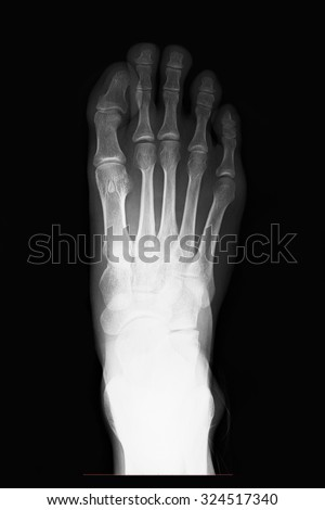 X-ray left human foot AP view - stock photo