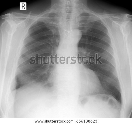 x-ray lungs: Postoperative lung changes.