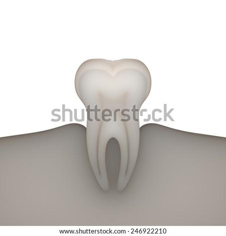 X-ray molar on white background. - stock photo