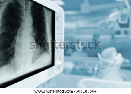 X-ray monitor during surgical operation with a blank space for your text - stock photo