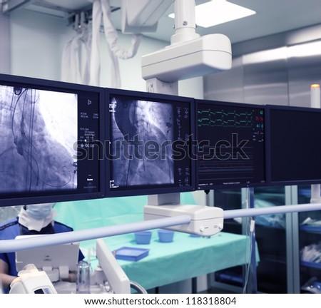 X-ray monitors - stock photo