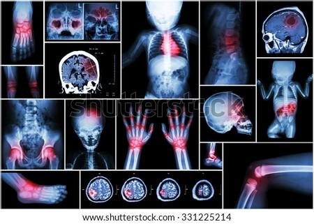 X-ray multiple part of child 's body & multiple disease ( stroke , brain tumor , rheumatoid arthritis , sinusitis , gouty arthritis , etc)( skull chest lung heart spine arm hand pelvis leg knee foot ) - stock photo