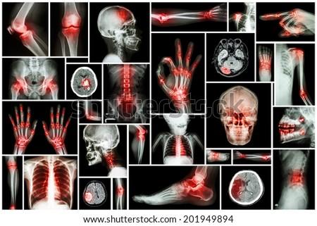 X-ray multiple part of human with multiple disease (stroke,arthritis,gout,rheumatoid,brain tumor,osteoarthritis,etc) - stock photo