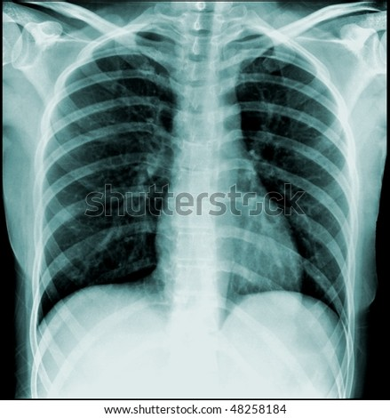 X-ray of a human chest, front view on black background - stock photo