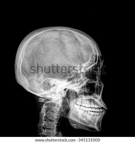 X-ray of a human skull - stock photo