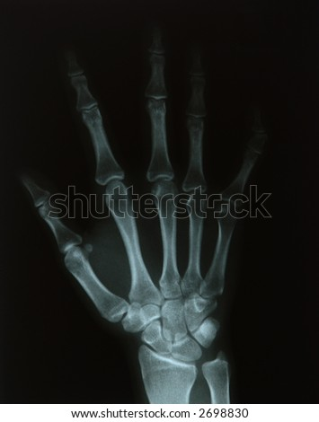X-ray of a young woman's hand