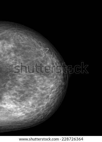 X-ray of Breast Cancer - stock photo