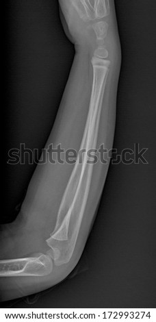 X ray of broken arm with humerus fracture