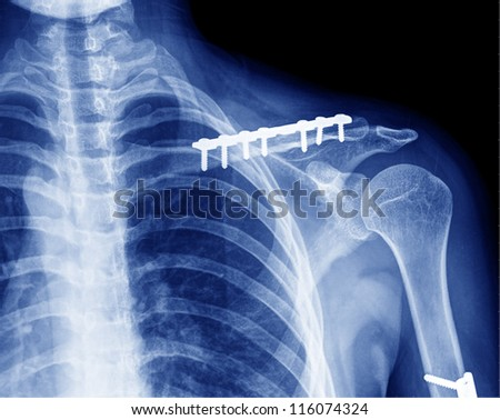 X- ray of collarbone - stock photo
