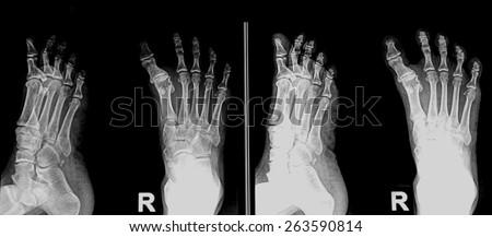 X-RAY of foot - stock photo