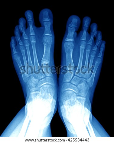 x-ray of foot image