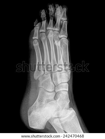 x-ray of foot , side view