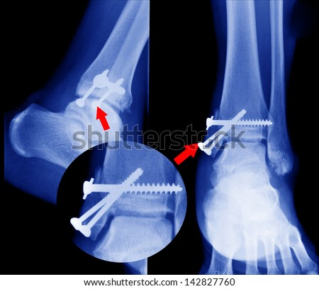 x ray of fractures bone - stock photo