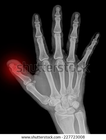 X-ray of hand fractures