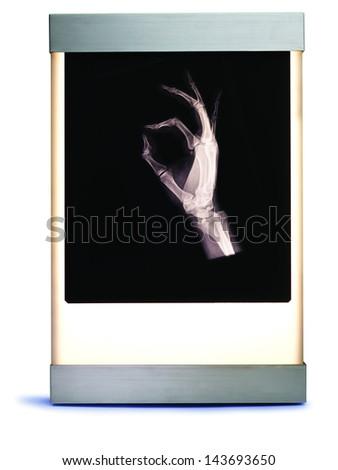 X Ray of Hand on Lightbox - stock photo