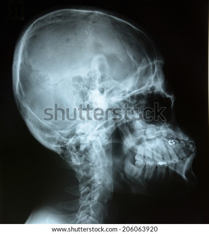 X-ray of head / Many others X-ray images in my portfolio