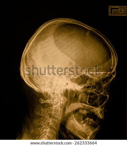 X-ray of head / Many others X-ray images in my portfolio - stock photo