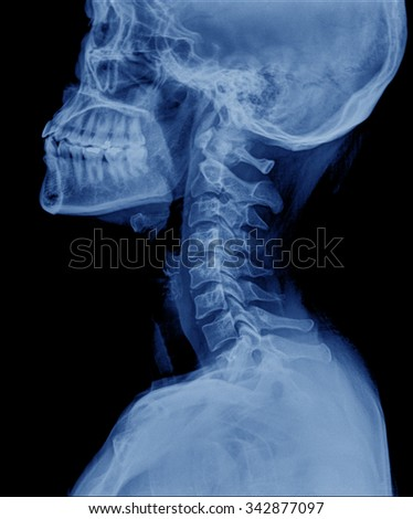 X-ray of head / Many others X-ray images in my portfolio.