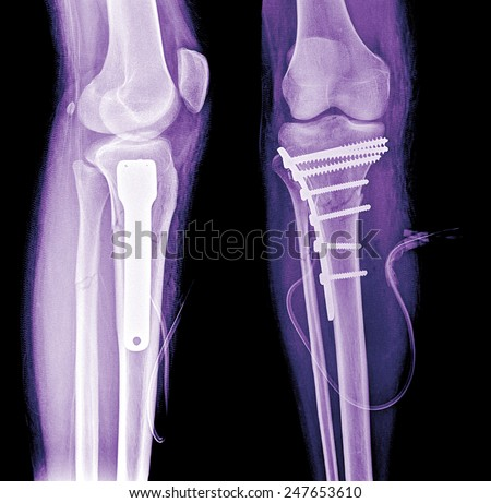 x-ray of human broken leg after surgery, 2 view - stock photo