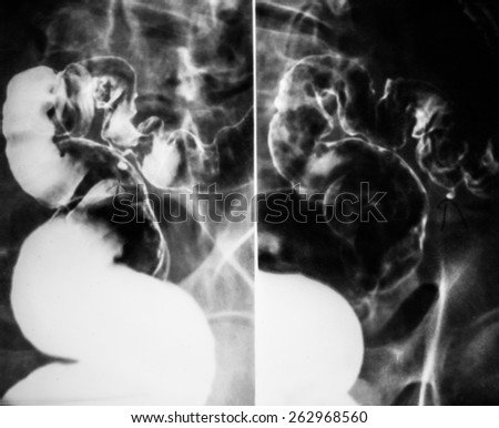 x-ray of intestinal abdominal - stock photo