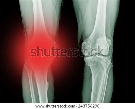 X-ray of Knee - stock photo