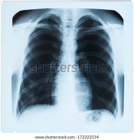 X-ray of man's lungs during pneumonia