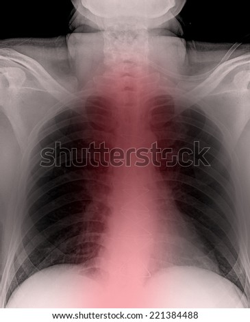 X-ray of man's lungs during pneumonia - stock photo