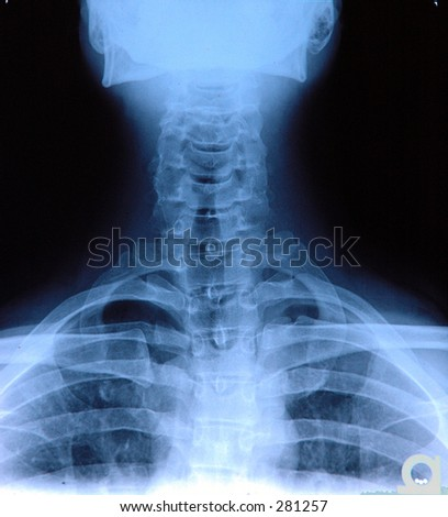 X-ray of neck from back.