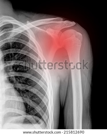 X-ray of pain shoulder joint ( Clavicle Antero-posterior ) on black blackground - stock photo