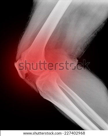 X-ray of painful knee  - stock photo