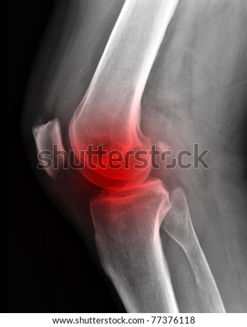 X-ray of painful knee  / Many others X-ray images in my portfolio.
