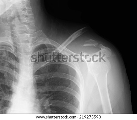 X-ray of shoulder - stock photo