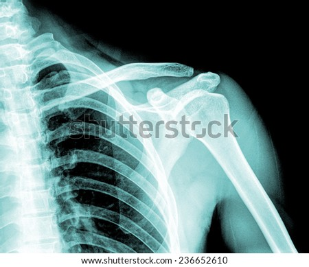 X-ray of shoulder joint - stock photo