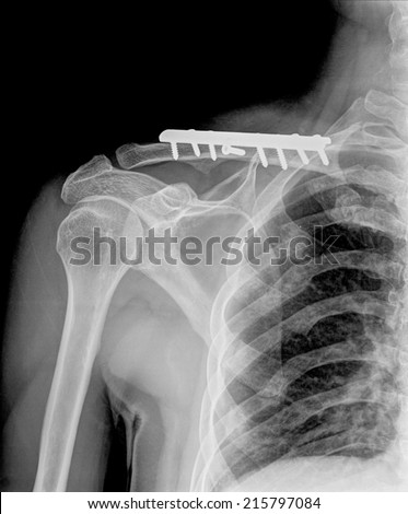 X-ray of shoulder joint ( Clavicle Antero-posterior ) on black blackground