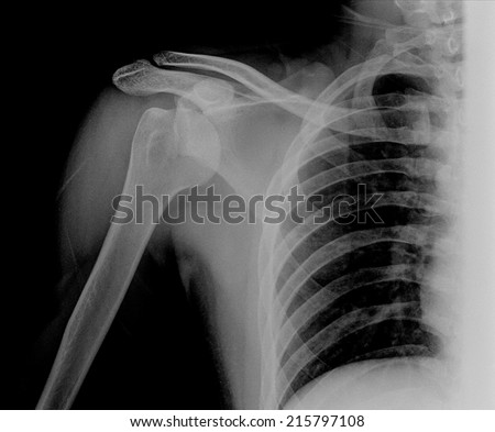 X-ray of shoulder joint ( Clavicle Antero-posterior ) on black blackground - stock photo