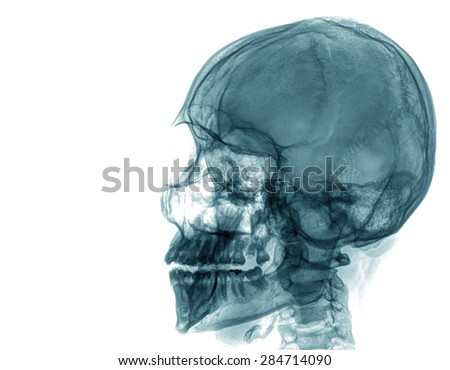 x ray of skull , isolated on white background - stock photo