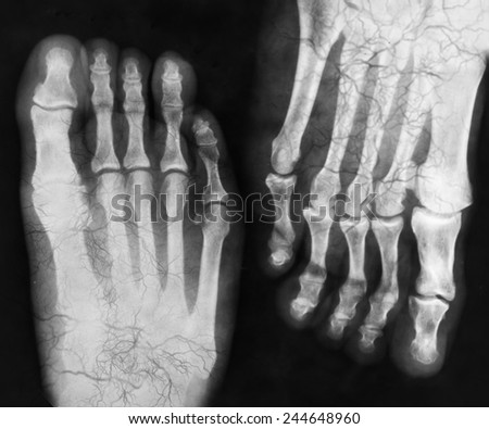 X-ray of the foot - stock photo