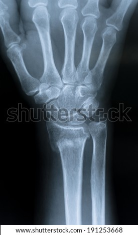 X-Ray of the hand / Distal radial epiphysis fracture - stock photo