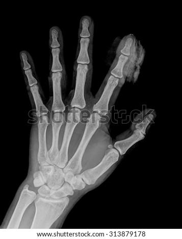 X-ray of the hands on black background